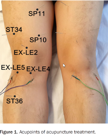 Acupuncture For Osteoarthritis Of The Knee - Acupuncture ...