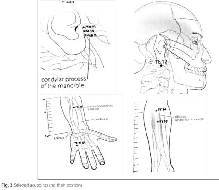 Acupuncture Cures Tinnitus - Acupuncture Acupressure Points